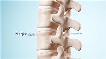 NU-Spine: The Minimally Invasive Spine Surgery Institute | NU-Spine: The Minimally Invasive Spine Surgery Institute